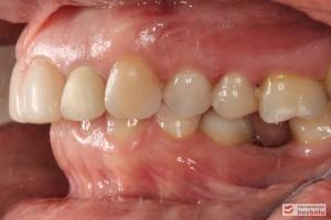 Zęby w zwarciu - strona lewa, brak szóstki dolnej, szóstka górna przekracza płaszczyznę okluzyjną, II klasa kłowa