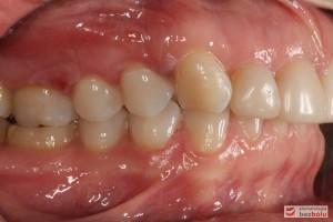 Zęby w zgryzie - strona prawa, II klasa kłowa i Angle'a, mezjalna inklinacja kła