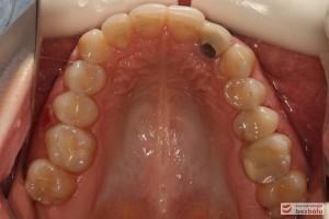 Szczęka - widok okluzyjny, nieregularny kształt łuku zębowego, metal na dwójce górnej
