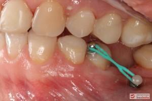 Mikrośruba ortodontyczna - 5 dolna lewa aktywowana do miniimplantu w celu dowargowego wychylenia