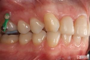 Zęby w dyskluzji - widok z boku, orotodontyczna intruzja zęba szóstego