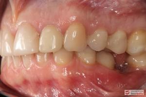 Zęby w zgryzie - strona lewa, przechylenie dojęzykowe piątki w żuchwie