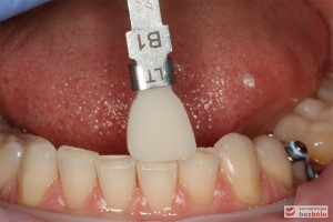 Dobór koloru - dostosowanie dla licówek do zębów w obu łukach