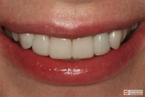 Radosny uśmiech pacjentki po zakończonej terapii