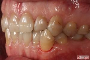 Zęby w zwarciu - strona lewa, kieł w zgryzie krzyżowym i znacznie starte zęby boczne