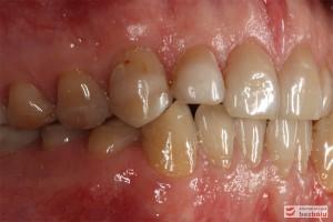 Zęby w zwarciu - strona prawa, przebarwienia świadczące o chorobie szkliwa (hypoplazja)