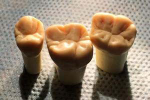Sztuka modelowania w stomatologii - wyrzeźbione korony zębów
