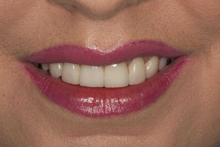 ortodontyczna_protetyczna_terapia
