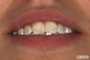 Nadmierne wychylenie zębów siecznych górnych