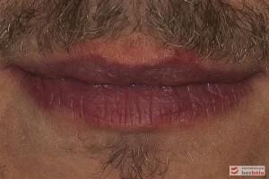 Dolny odcinek twarzy - usta zamknięte symetryczne