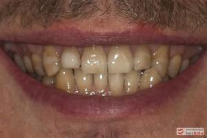 Uśmiech pacjenta - ekspozycja dziąsła w strefach bocznych, za długie zęby dolne przednie
