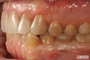 Zęby w zwarciu - strona lewa, rekonstrukcje kompozytowe w strefach bocznych