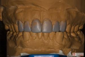 Modele gipsowe w artykulatorze - nawoskowane zęby od kła do kła w celu ich wydłużenia