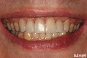 Uśmiech pacjenta po leczeniu - radość i satysfakcja