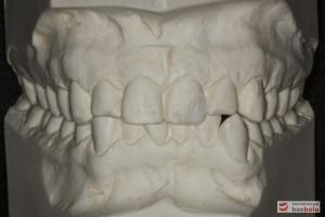 Ortodontyczne modele diagnostyczne - dla wykonania obliczeń wielkości i kształtu zębów