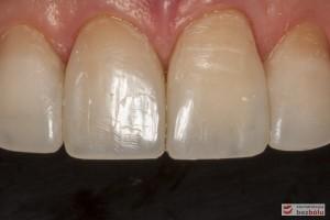 Zęby przednie w szczęce - bezpreparacyjna addycyjna rekonstrukcja materiałem kompozytowym