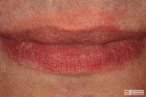 Usta zamknięte - regularny kształt warg