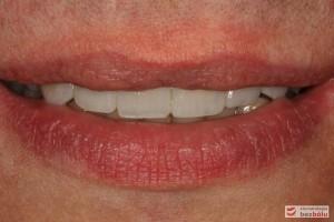 Uśmiech w spoczynku - wydłużone zęby sieczne i skrócone kły