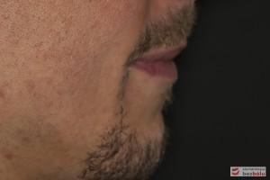 Ocena profilu twarzy - profil prosty, skośny do tyłu
