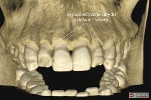 Diagnostyka tomograficzna - wolumetryczna rekonstrukcja układu kostno-zębowego