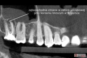 Diagnostyka radiologiczna - ocena zmian zapalnych w obrazie tomografii wolumetrycznej