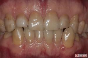 Zęby w zwarciu - widok frontalny, zaburzone relacje wielkości zębów, długości i szerokości