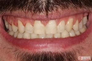 Uśmiech po leczeniu i wykonaniu wstępnej rekonstrukcji rudymentowanych siekaczy bocznych