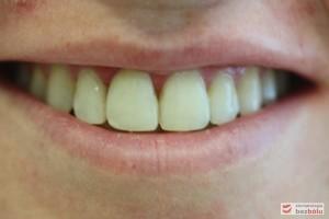 Uśmiech po leczeniu