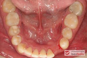 Widok powierzchni okluzyjnej zębów w żuchwie – pojedyncze braki zębowe