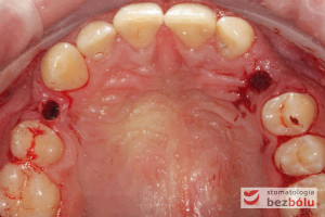 Wypreparowane łoża implantów
