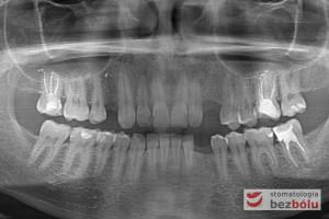 Stan po usunięciu zębów i wygojeniu zębodołów