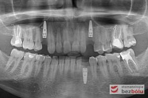 Kontrolne zdjęcie ortopantomograficzne po zabiegu chirurgicznym