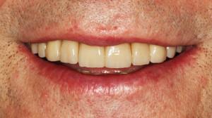 Efekt ostateczny pracy protetycznej  - uśmiech pacjenta.