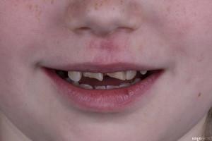 Złamany uśmiech dziecka (8 of 8)