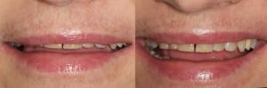 Sytuacja przed rozpoczęciem leczenia - faza uśmiechu