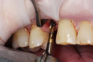 Preparacja łoża implantu