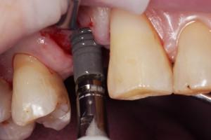 Wprowadzenie implantu